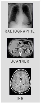 radiologie_montpellier_ORM_Scanner